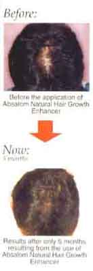 hair loss reversed with Absalom